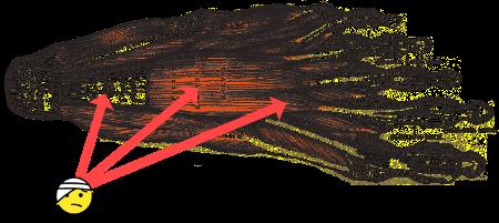A diagram of the plantar fascia