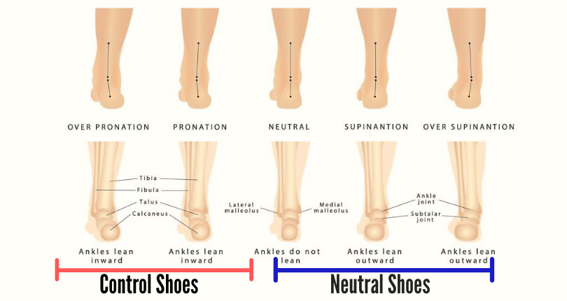 A graphic chart showing pronation, neutral, and supination of runner's feet and ankles